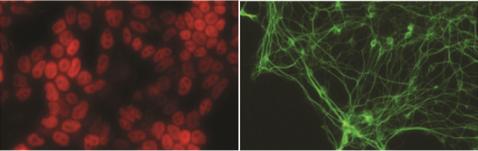 ES cells photo